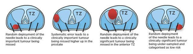 Diagram of TRUS biopsy issues