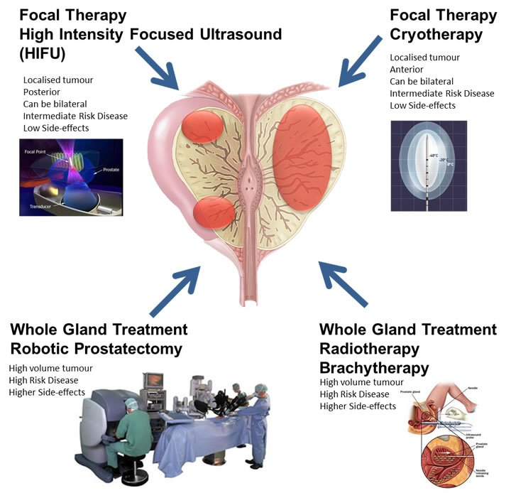Diagram of some Prostate Cancer treatment options