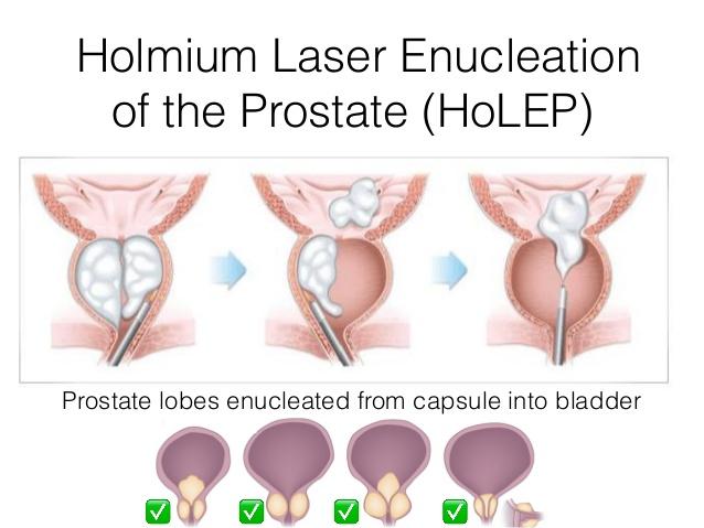 Holmium Laser treatment (HoLEP)