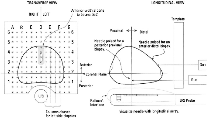 Illustration of Transperineal template for Prostate biopsies