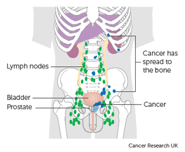 Figure1 Metastatic prostate cancer diagram